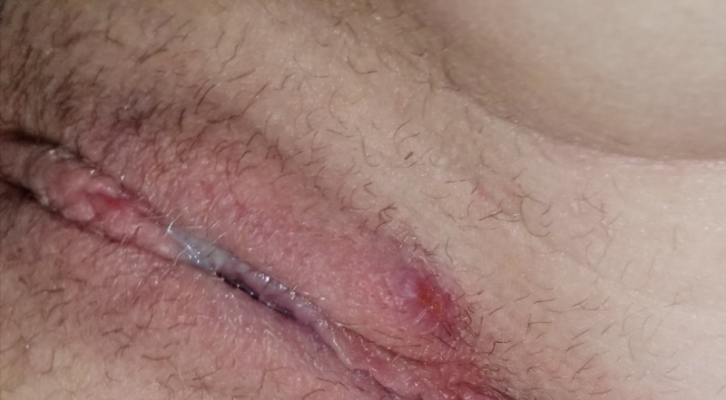 Raybould recommend Shaved cut cock